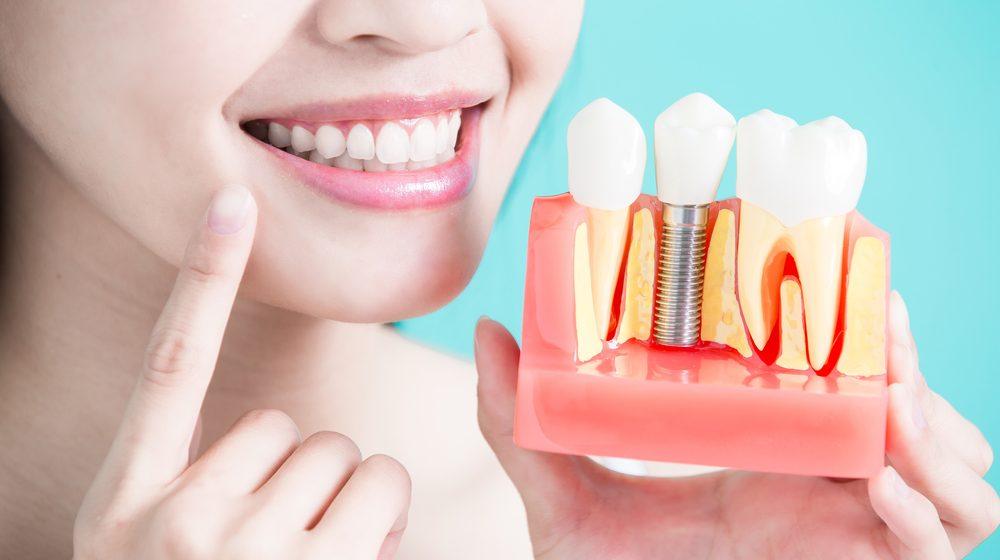 Výhody a nevýhody zubných implantátov